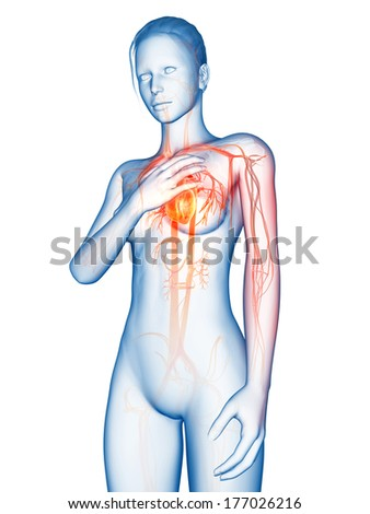 medical 3d illustration - heart attack