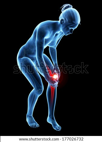 medical 3d illustration - woman having pain in the knee