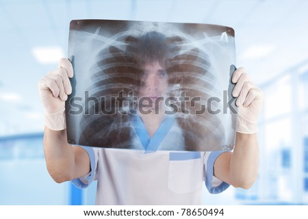 medical doctor looking through x-ray picture of lungs in hospital - stock photo