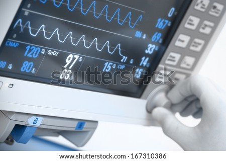 medical electronics. Monitor with ECG curves - stock photo