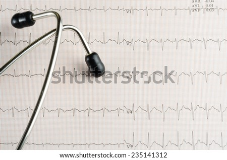 medical examination, electrocardiogram, heart medicine and therapy - stock photo