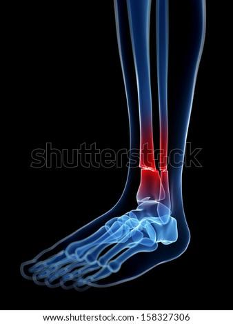 medical illustration of a broken leg bone - stock photo