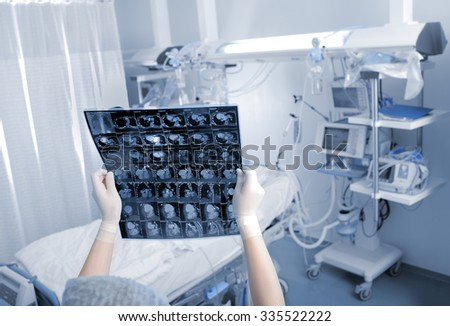 Medical specialist examines CT scan of the patient in the clinical ward - stock photo