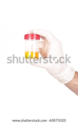 medical specimen collection bottle  with liquid in gloved hand - stock photo