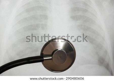 Medical stethoscope and x-ray or roentgen image. Close-up shot of lung radiography - stock photo