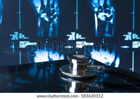 medical stethoscope on modern digital tablet pc in laboratory on x-ray images background. Concept of health care with new technology - stock photo