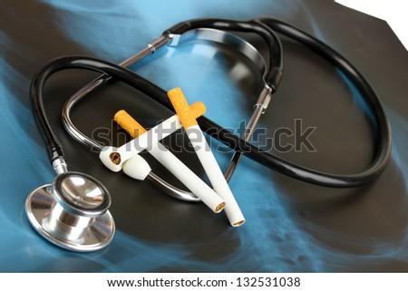 Medical stethoscope on x-ray picture with cigarettes close up
