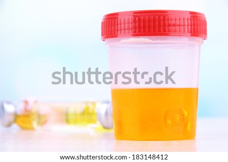 Medical urine test, close-up  - stock photo