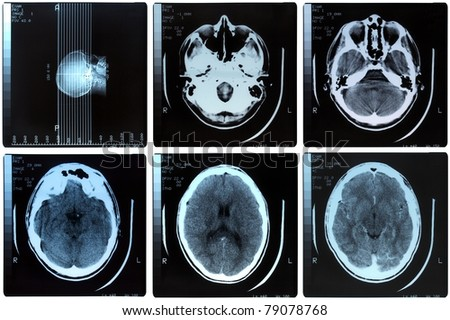 Medical X ray imaging of human brain skull bones
