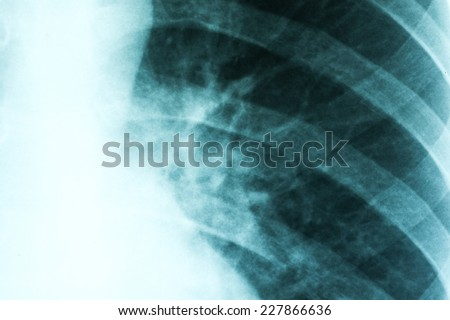 Medical X-Ray Of Pneumonia Infected Lungs - stock photo