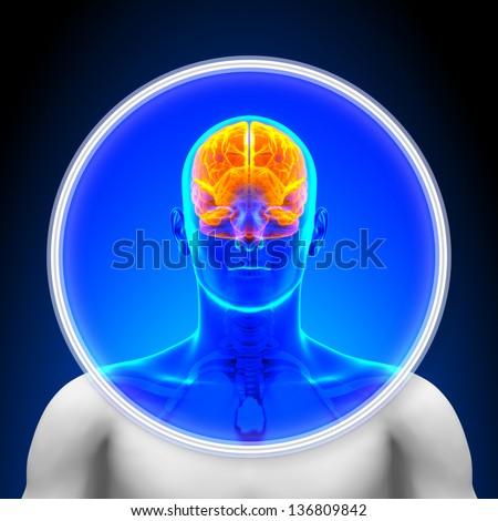 Medical X-Ray Scan - Brain - stock photo