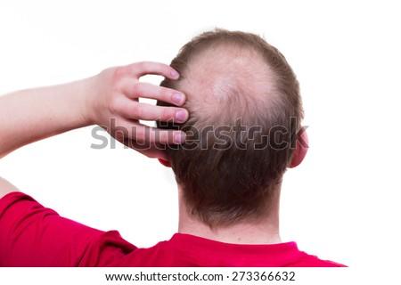 Men is loosing his hair - stock photo