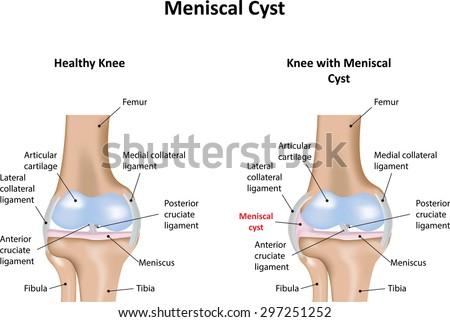 Meniscal Cyst - stock photo