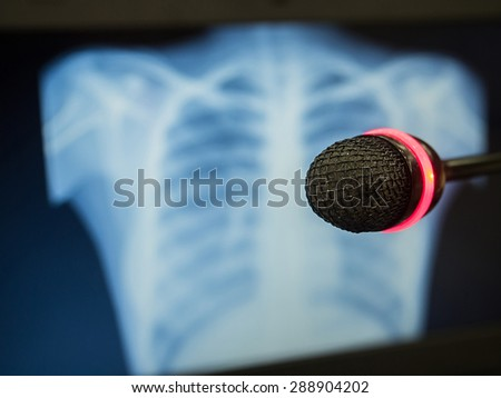 Microphone in concert hall or conference room with de focused X-ray film in background. Concept  for Health Conference or Medical Symposium. - stock photo