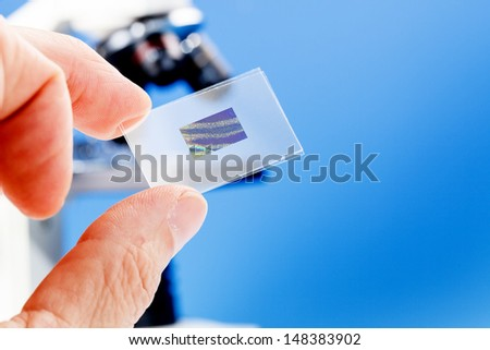 microscope slide with the preparation of cancerous tissue - stock photo