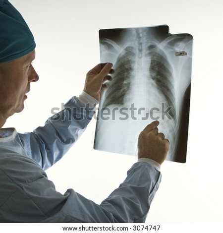 Mid-adult Caucasian male doctor pointing at an x-ray. - stock photo