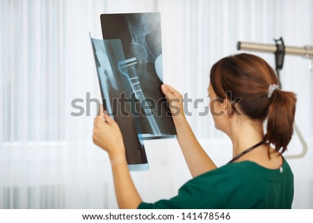 Mid adult female doctor comparing Xray reports in hospital