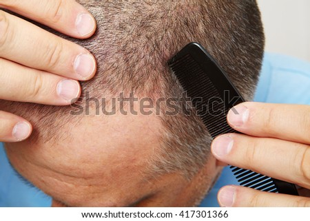 Middle-aged man concerned with hair loss. Baldness - stock photo