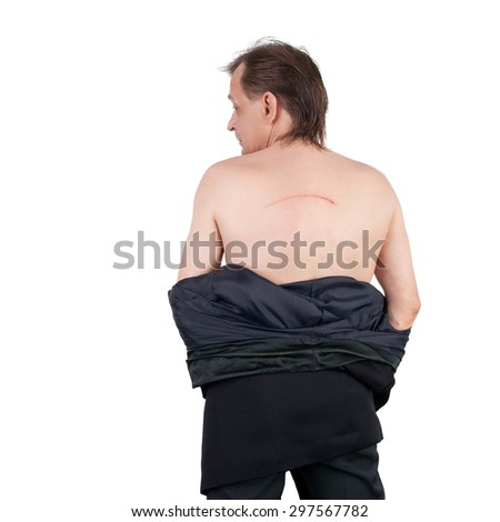 middle aged man with the blood scratch on his back