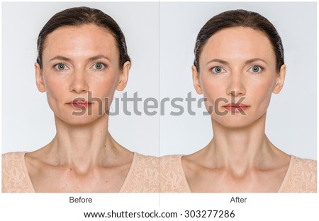 Middle aged Woman with and without aging singes, wrinkles, blemishes, mole. Before and after cosmetic or plastic procedure, anti-age therapy - stock photo