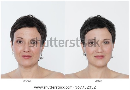 Middle aged Woman with and without bags under the eyes, aging singes, wrinkles, blemishes. Before and after cosmetic or plastic procedure, anti-age therapy, blepharoplasty.