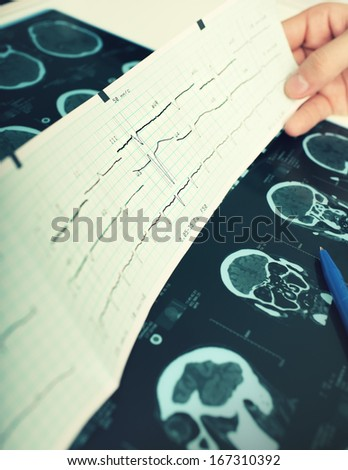 Modern examination in the hospital  - stock photo