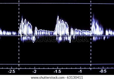 Monitor Heart ultrasound - stock photo