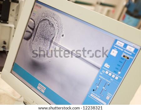 Monitor showing intra cytoplasmic sperm injection (ICSI) - stock photo