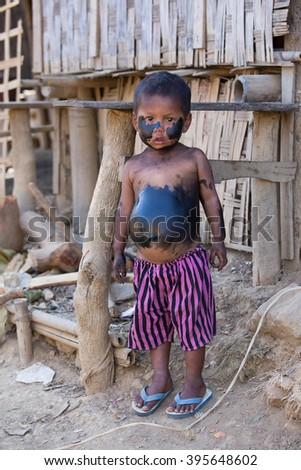 MRAUK-U, MYANMAR - JANUARY 26, 2016: Unidentified grimy child standing on the street