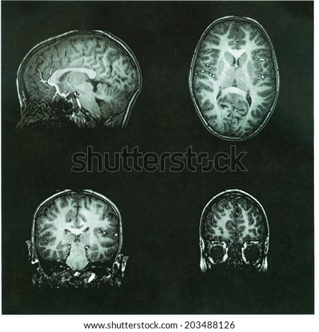 MRI Brain Scan of a pre-teen child's brain