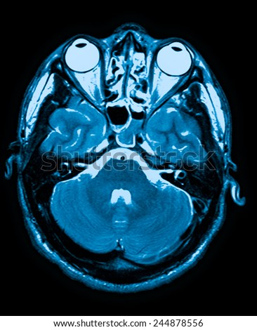 mri head magnetic resonance image of the head scan - stock photo