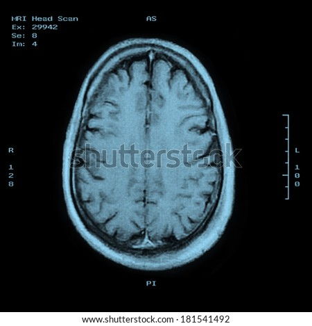 MRI Head Scan Top view - stock photo