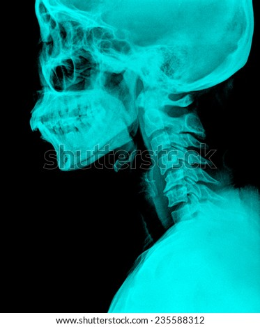 MRI - Magnetic Resonance Imaging of Spinal Column and Skull Head - stock photo