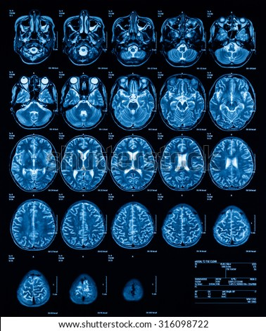 MRI (Magnetic resonance imaging) of the brain, transverse view, T2. (History: A 13 years old boy with fever and alteration of consciousness, was sent to rule out eosinophilic meningitis) - stock photo