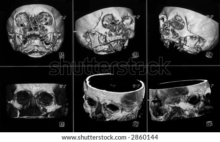 MRI of human head on black and white film
