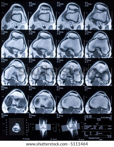 MRI of knee in top view. - stock photo