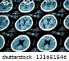 MRI scan.Human scull analyze - stock photo