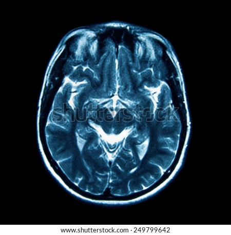 MRI scan of the brain - stock photo