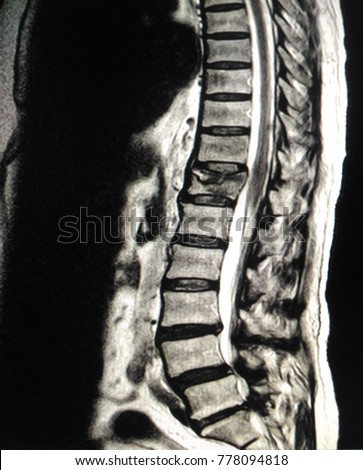 Mri Thoracolumbar Spinemoderate Compression Fracture T12 Stock Photo