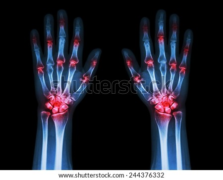 multiple joint arthritis both hands ( Gout , Rheumatoid ) on black background - stock photo