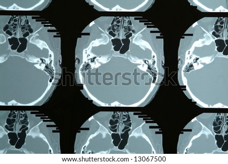 Multiples magnetic resonance image of brain and cranium, MRI