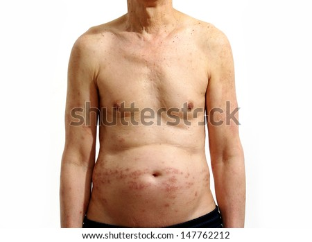 naked human body with aging skin disorder and health problems. isolated on white background.