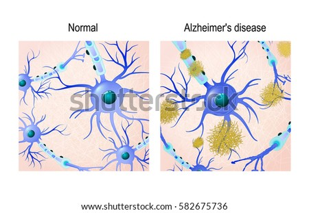 the clinical background information of alzheimers disease The personalized alzheimer's disease cortical thickness index predicts likely pathology and clinical of alzheimer's disease alzheimer's & dementia.