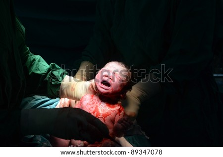 New baby being born during cesarean section - stock photo