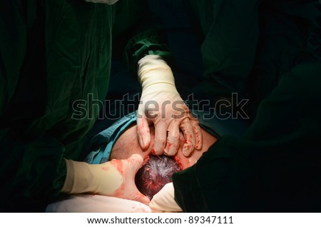 New Baby Being Born During Cesarean Stock Photo 89347114 ...