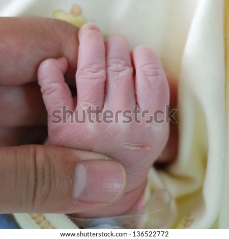 new born infant in the operation room post operation - stock photo