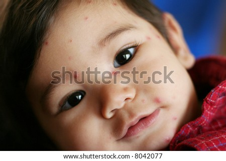 Nine month old baby boy with chicken pox