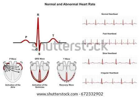 Normal abnormal heart rate infographic diagram stock illustration normal and abnormal heart rate infographic diagram including activation of atria ventricle recovery wave also chart ccuart Image collections