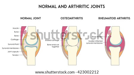 Normal and arthritic human joints. Types of arthritis. Minimal flat illustration for print or web  - stock photo