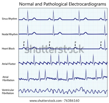 Normal and diseased ecg collection - stock photo